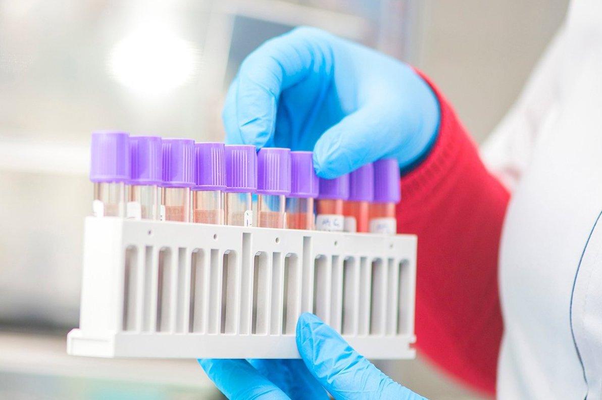 Испания стала первой страной в Европе, где выявлено более 1 млн зараженных COVID-19